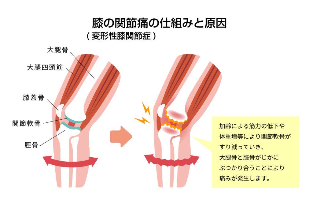 変形性膝関節症の仕組み